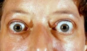глазные симптомы при тиреотоксикозе