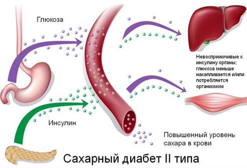 от чего происходит диабет