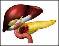 рак поджелудочной железы симптомы и причины