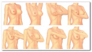 мастопатия симптомы  и клиническая картина
