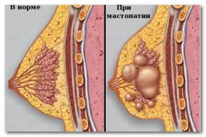мастопатия симптомы болезни