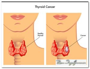 рак щитовидной железы симптомы