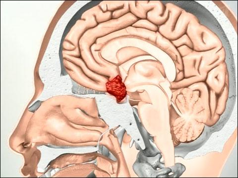адренокортикотропный гомрон