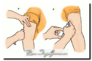подкожные инъекции при сахарном диабете