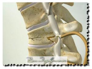 симптомы остеопороза и  проявления