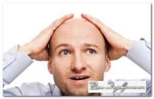 выпадение волос у мужчин на голове